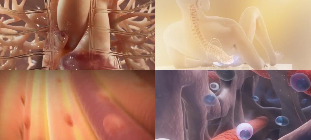 借助我们的服务制作简洁有效的医学视频